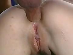Retro anal